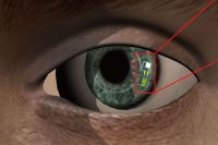 Smart Contact Lens Helps Diabetics Track Glucose Levels While Remaining Comfortable to Wear